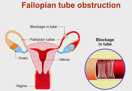 Tests Used to Determine Fallopian Tubes Disorder