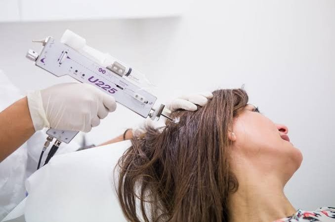 What are the pros and cons of mesotherapy for hair growth?
