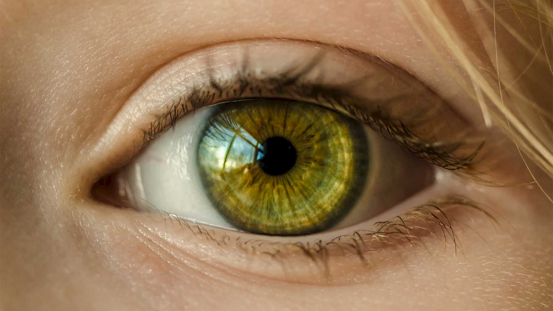 Why get under-eye fillers?